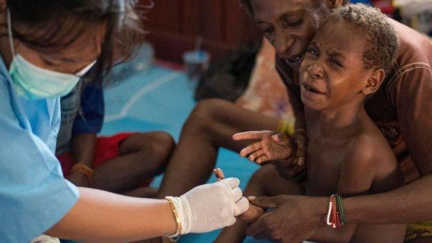 Crise de sarampo e desnutrição em Papua