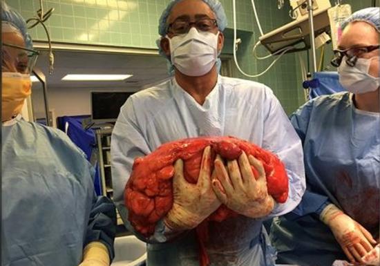 Tumor de 13 kg